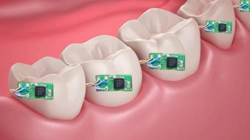دندانهای دیجیتال